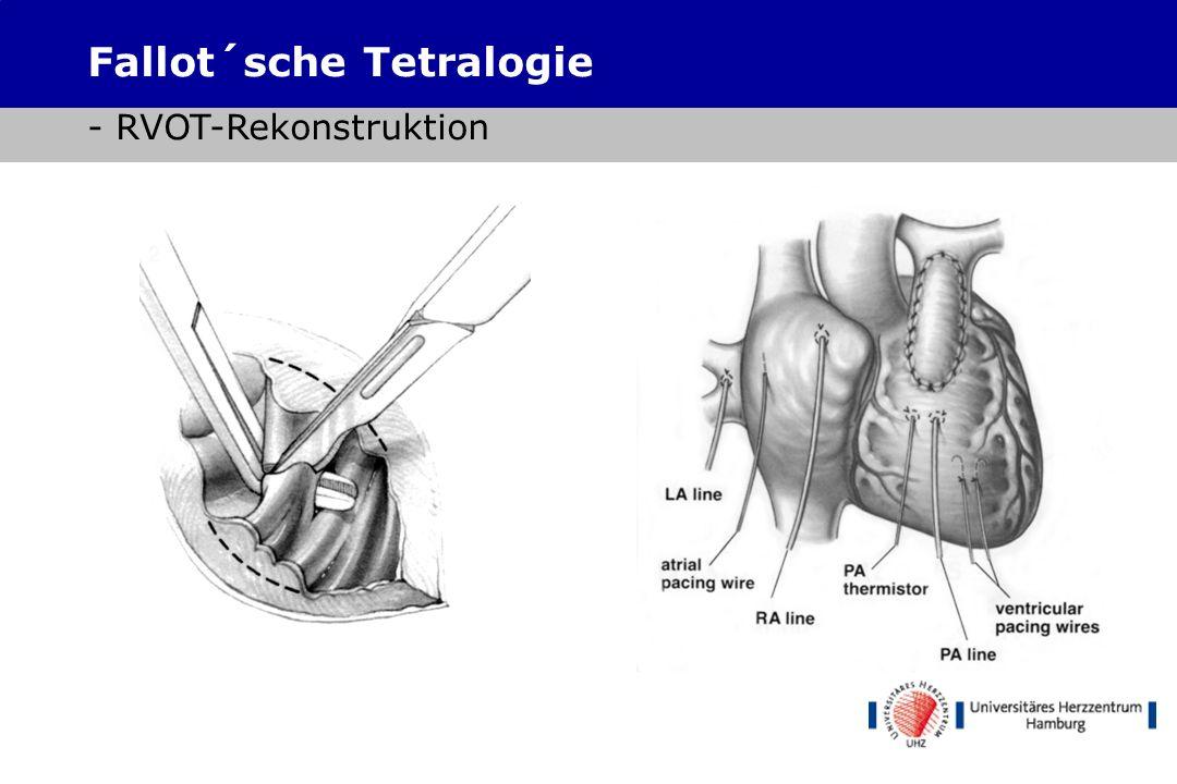 Fallot´sche Tetralogie - RVOT-Rekonstruktion