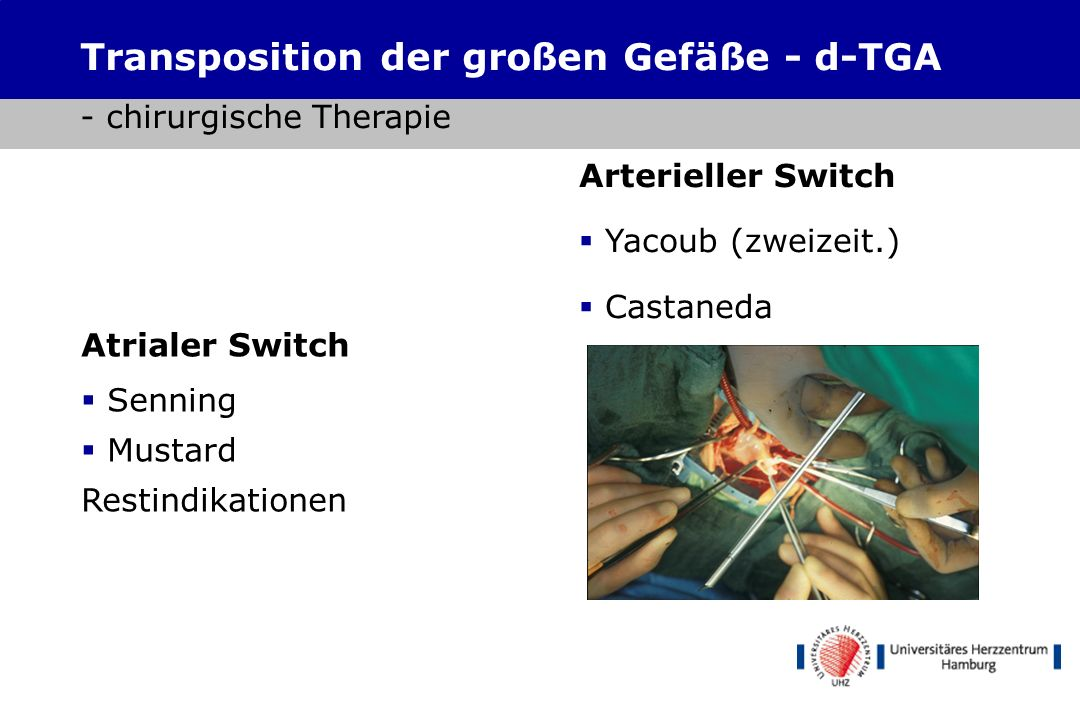 Transposition der großen Gefäße - d-TGA - chirurgische Therapie