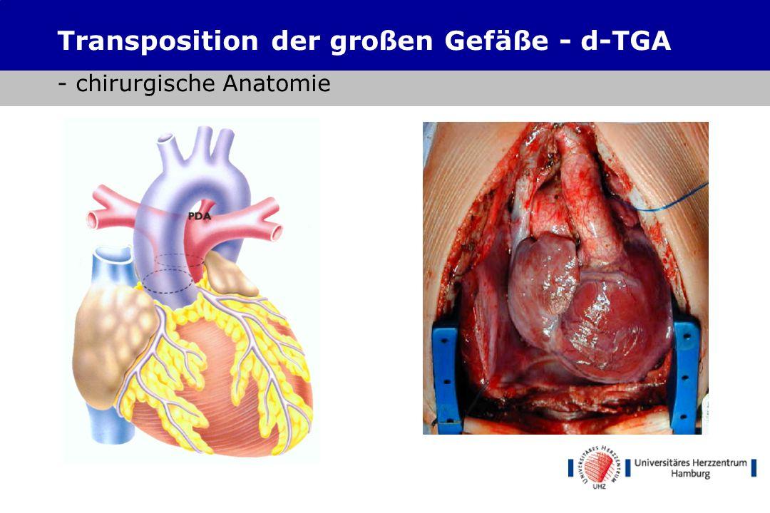 Transposition der großen Gefäße - d-TGA - chirurgische Anatomie