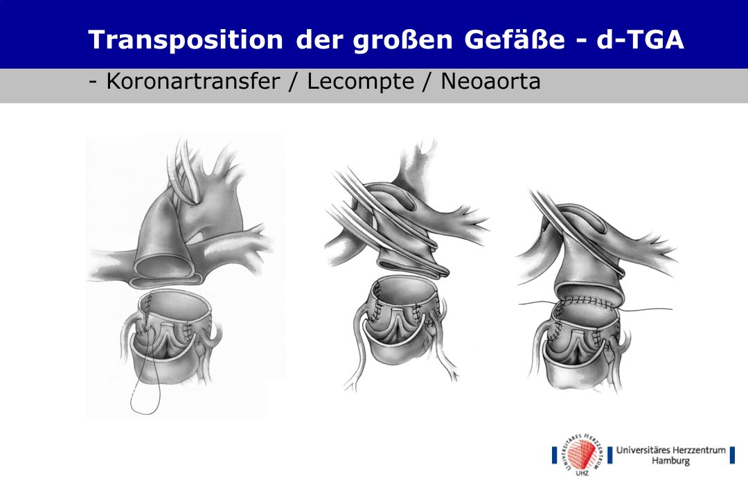 Ungewöhnlich Anatomie Der Großen Gefäße Ideen - Anatomie Ideen ...