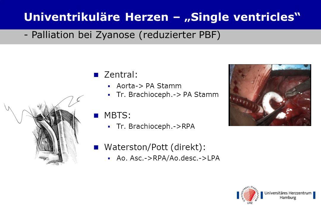 """Shunts Univentrikuläre Herzen – """"Single ventricles - Palliation bei Zyanose (reduzierter PBF) Zentral:"""