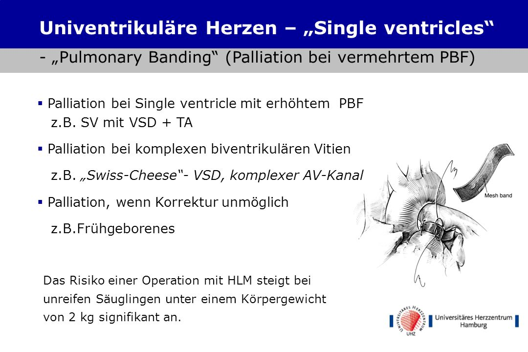 "Univentrikuläre Herzen – ""Single ventricles"