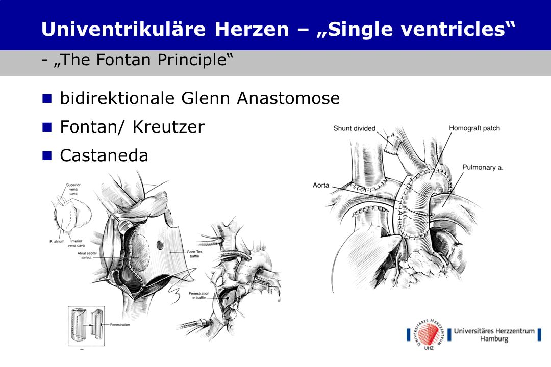 "Univentrikuläre Herzen – ""Single ventricles - ""The Fontan Principle"