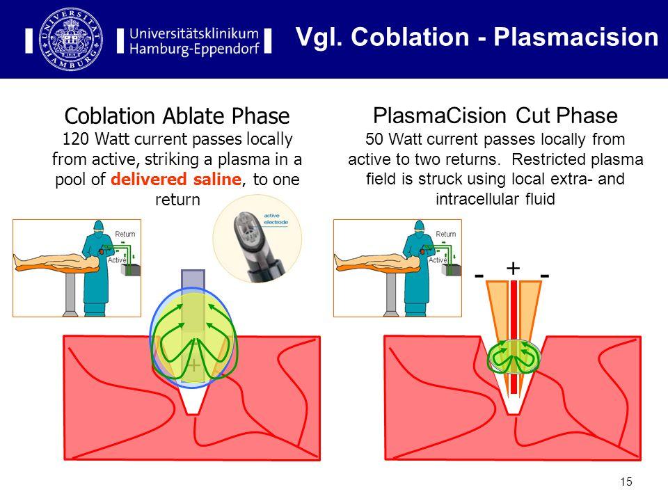 Vgl. Coblation - Plasmacision