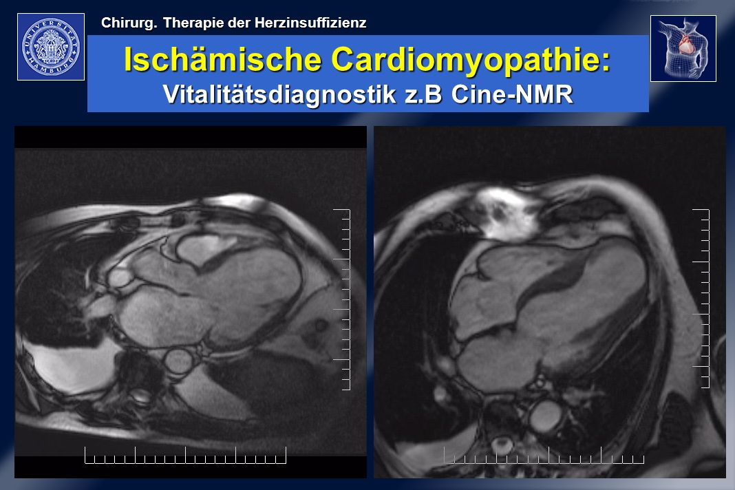 Ischämische Cardiomyopathie: Vitalitätsdiagnostik z.B Cine-NMR