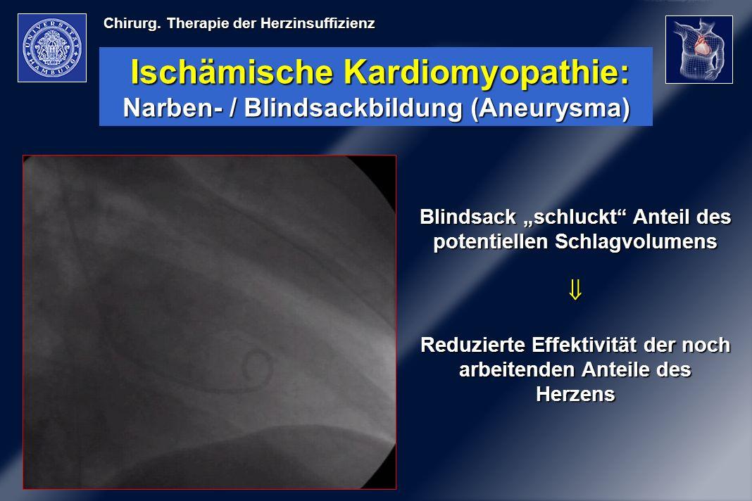 Ischämische Kardiomyopathie: Narben- / Blindsackbildung (Aneurysma)