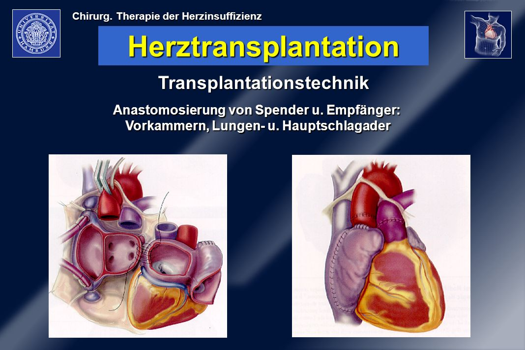 Herztransplantation Transplantationstechnik