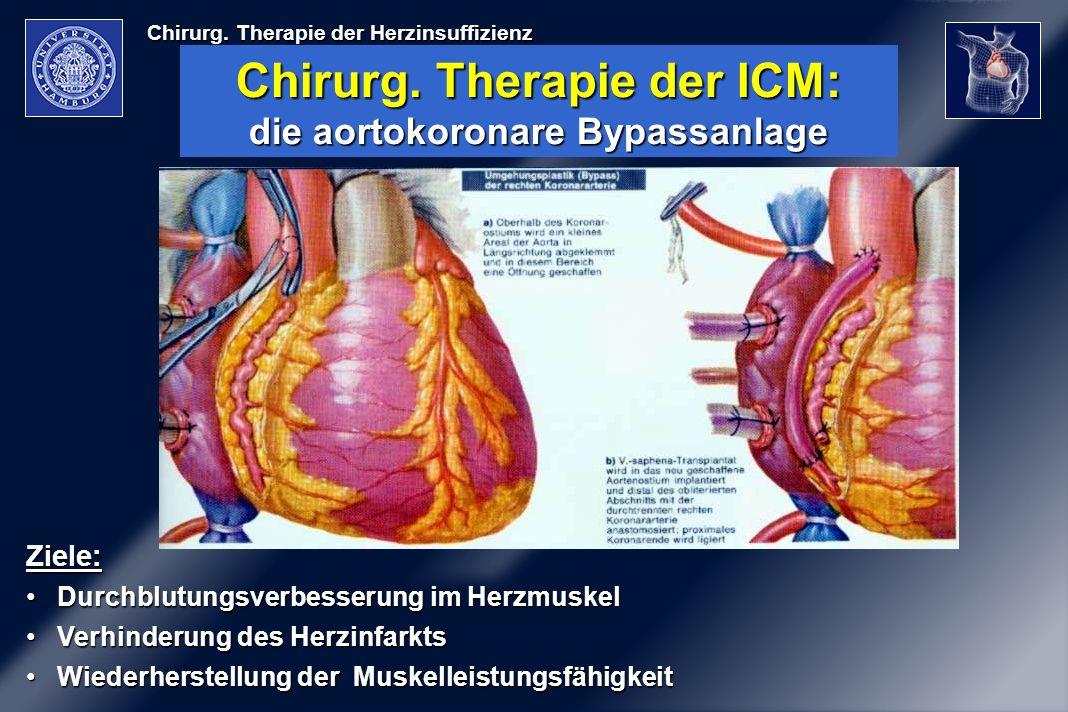 Chirurg. Therapie der ICM: die aortokoronare Bypassanlage