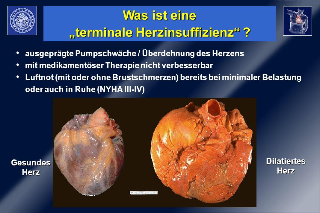 """Was ist eine """"terminale Herzinsuffizienz"""