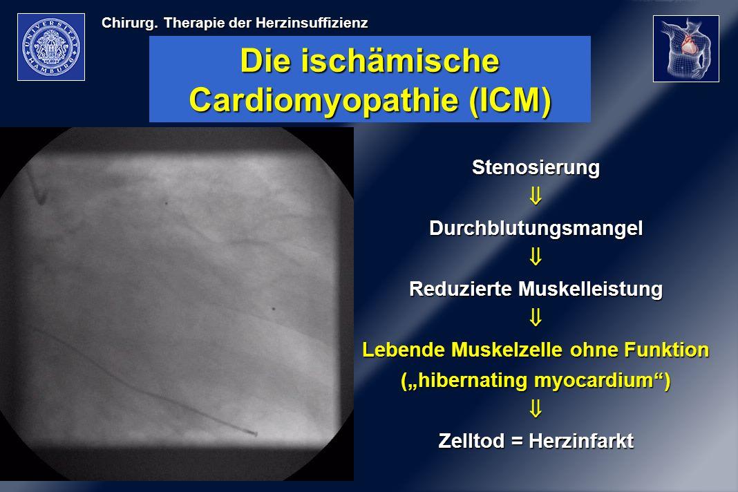 Die ischämische Cardiomyopathie (ICM)