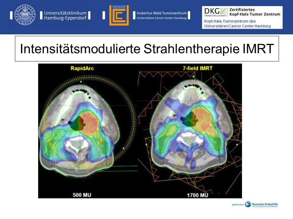 Intensitätsmodulierte Strahlentherapie IMRT