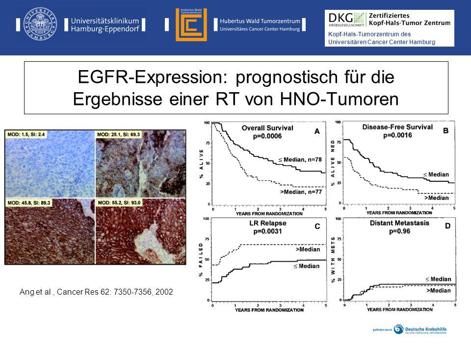 EGFR-Expression: prognostisch für die Ergebnisse einer RT von HNO-Tumoren