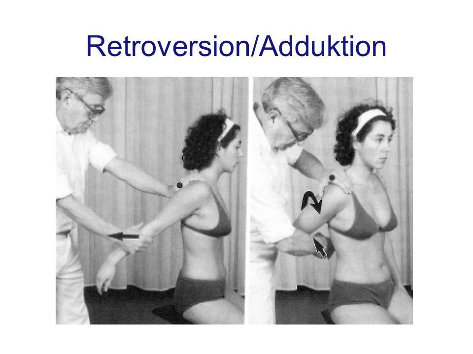Retroversion/Adduktion