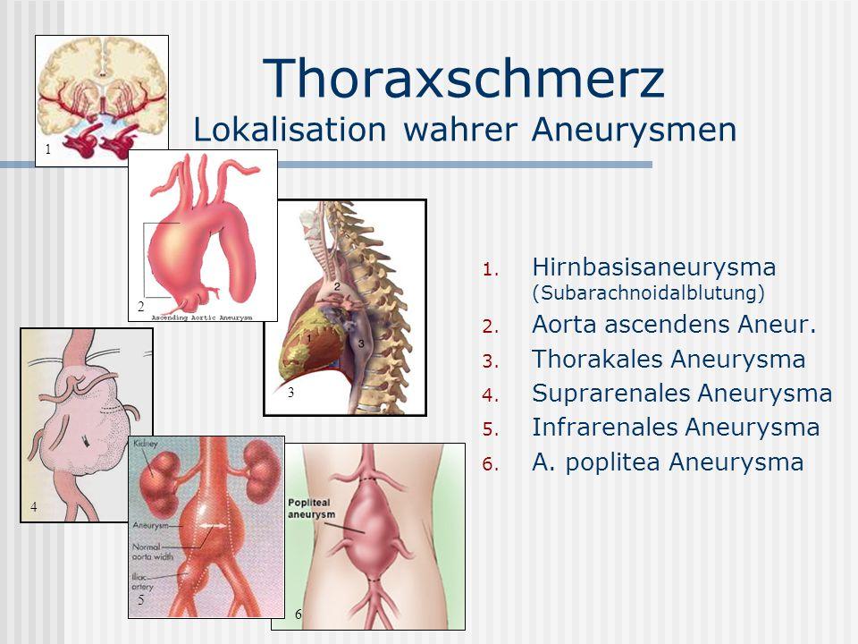 Thoraxschmerz Lokalisation wahrer Aneurysmen
