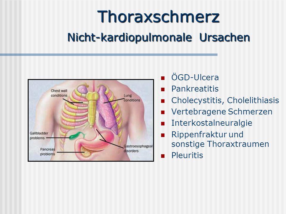 Thoraxschmerz Nicht-kardiopulmonale Ursachen