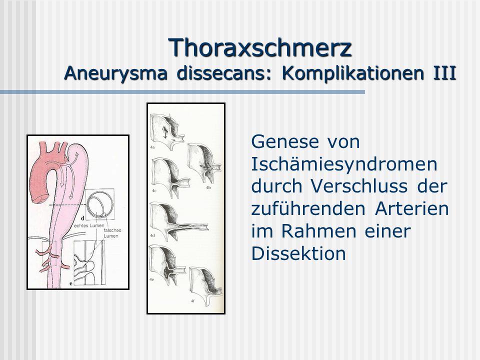 Thoraxschmerz Aneurysma dissecans: Komplikationen III