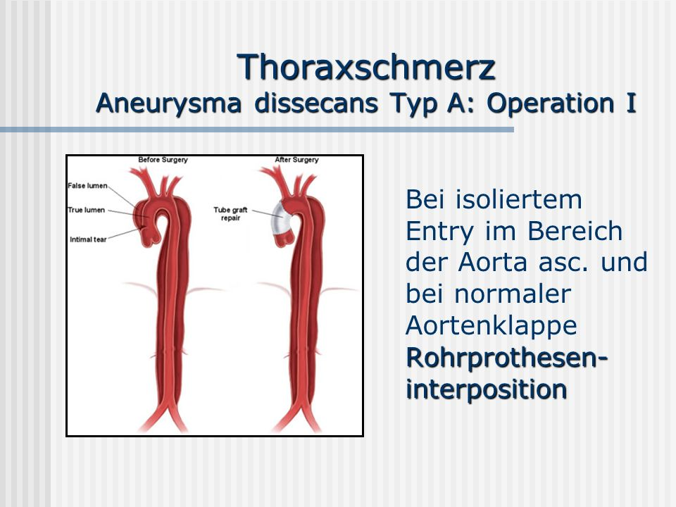 Thoraxschmerz Aneurysma dissecans Typ A: Operation I