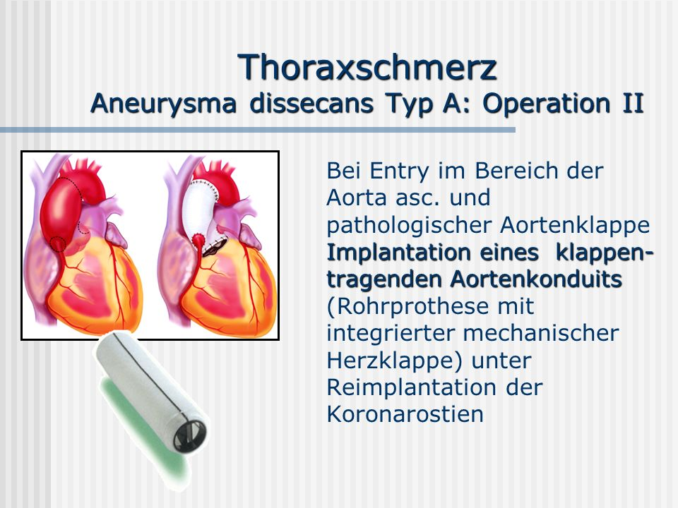 Thoraxschmerz Aneurysma dissecans Typ A: Operation II