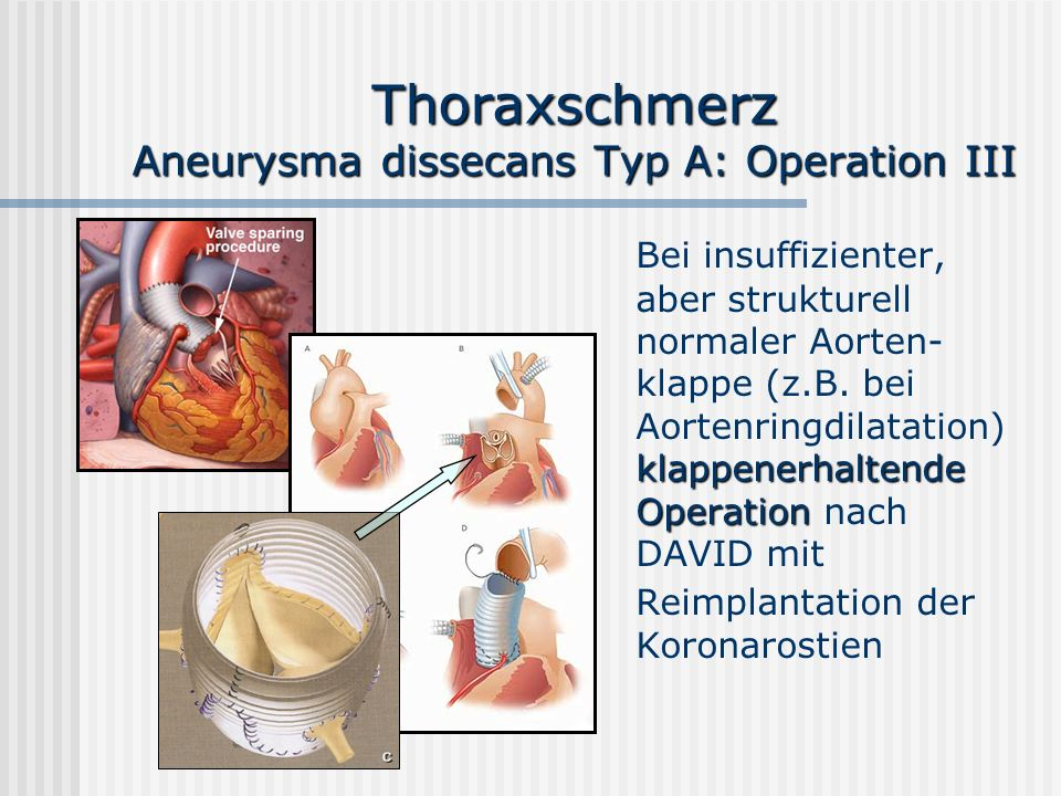 Thoraxschmerz Aneurysma dissecans Typ A: Operation III