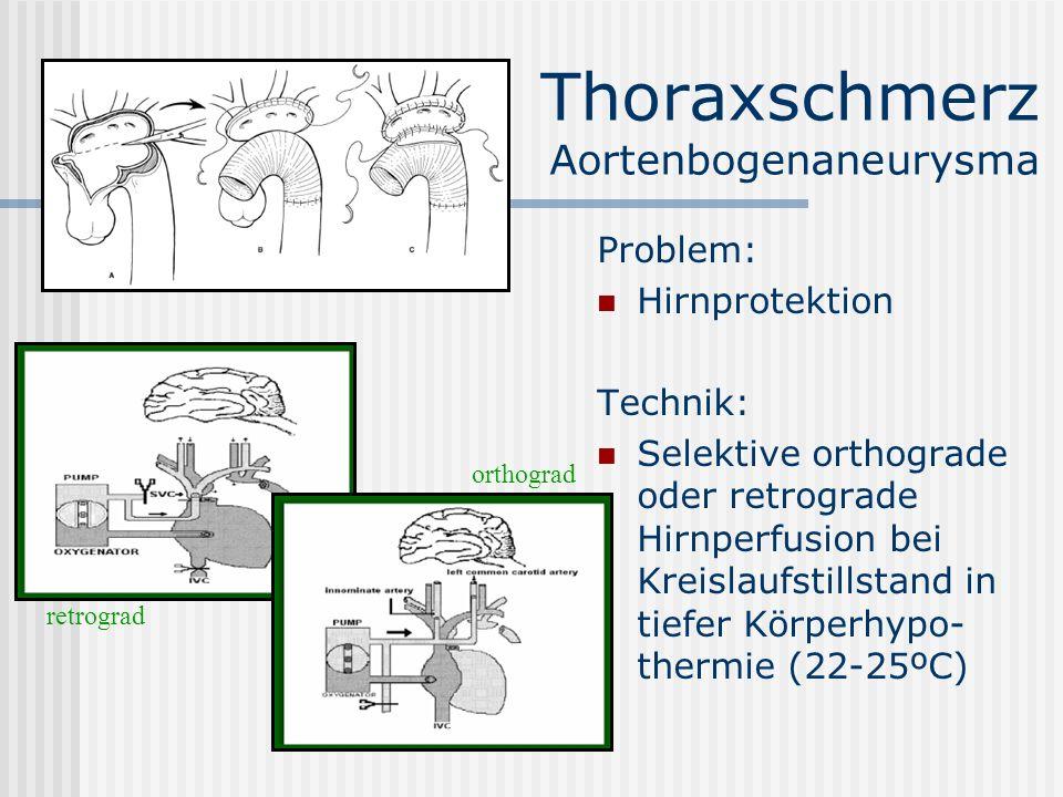 Thoraxschmerz Aortenbogenaneurysma