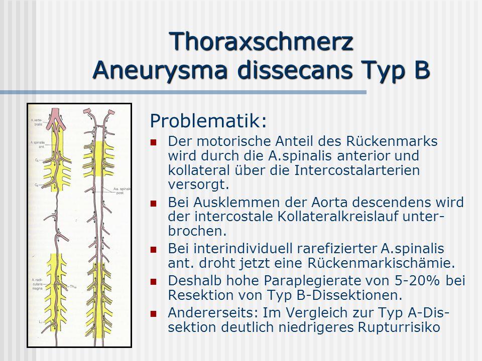 Thoraxschmerz Aneurysma dissecans Typ B