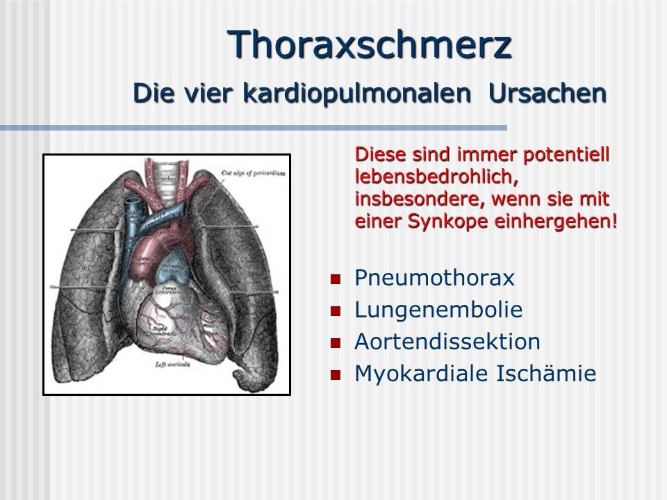 Thoraxschmerz Die vier kardiopulmonalen Ursachen