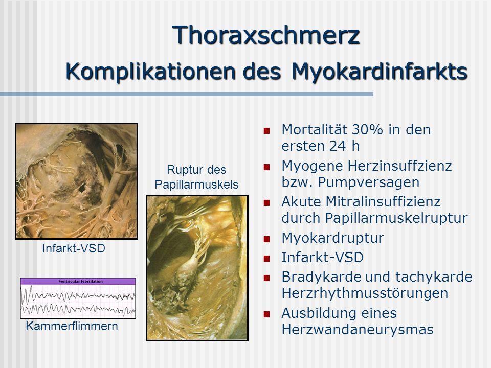 Thoraxschmerz Komplikationen des Myokardinfarkts