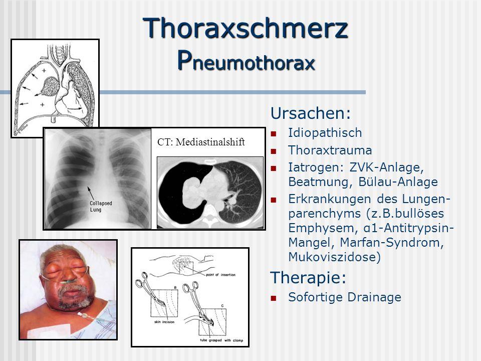 Thoraxschmerz Pneumothorax