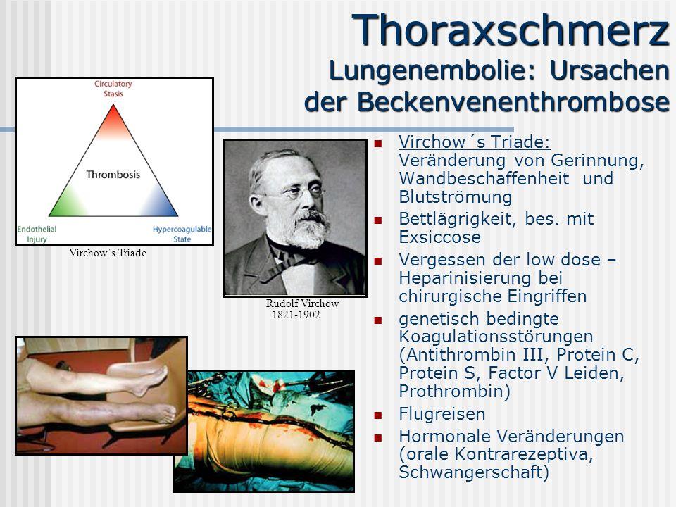 Thoraxschmerz Lungenembolie: Ursachen der Beckenvenenthrombose