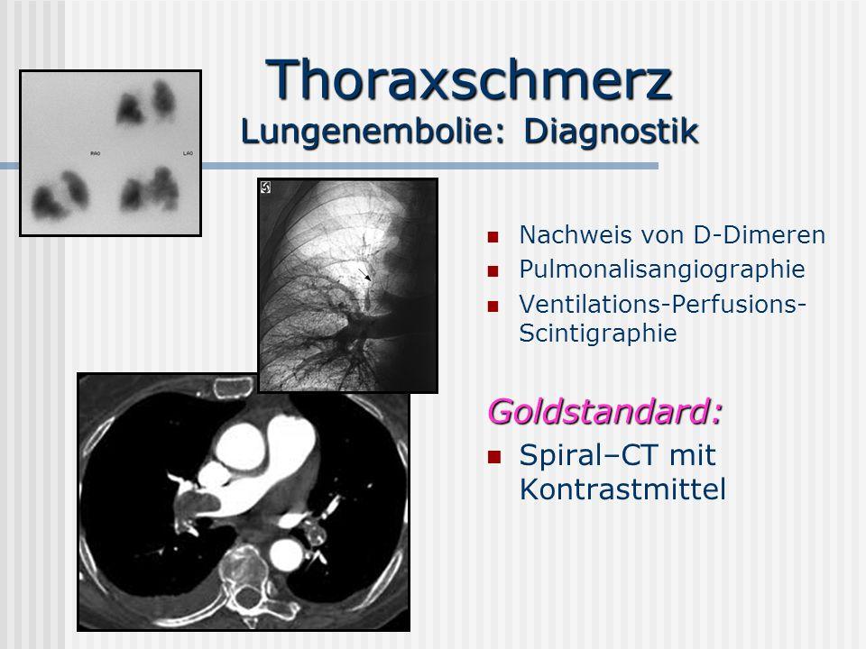 Thoraxschmerz Lungenembolie: Diagnostik