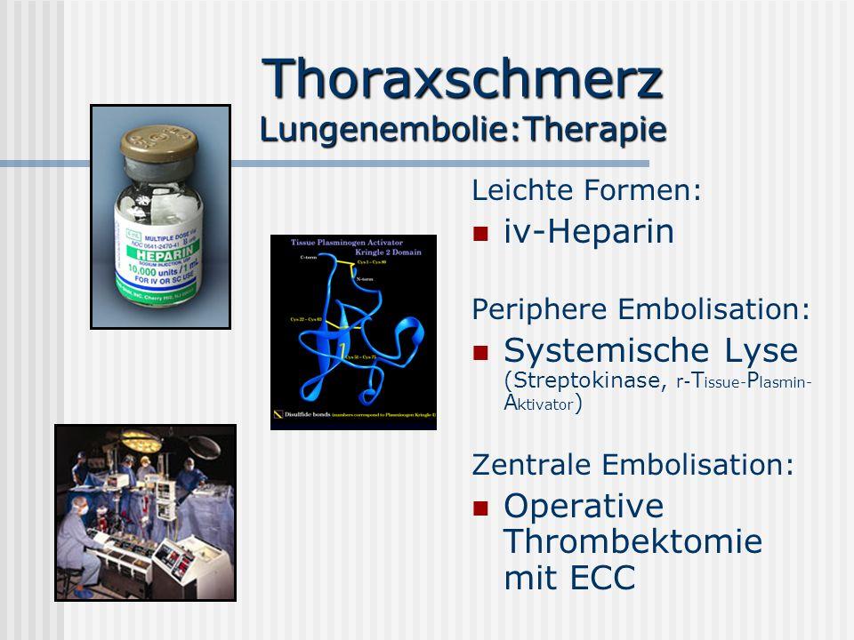 Thoraxschmerz Lungenembolie:Therapie