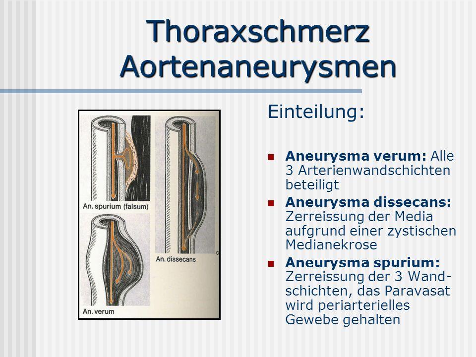 Thoraxschmerz Aortenaneurysmen