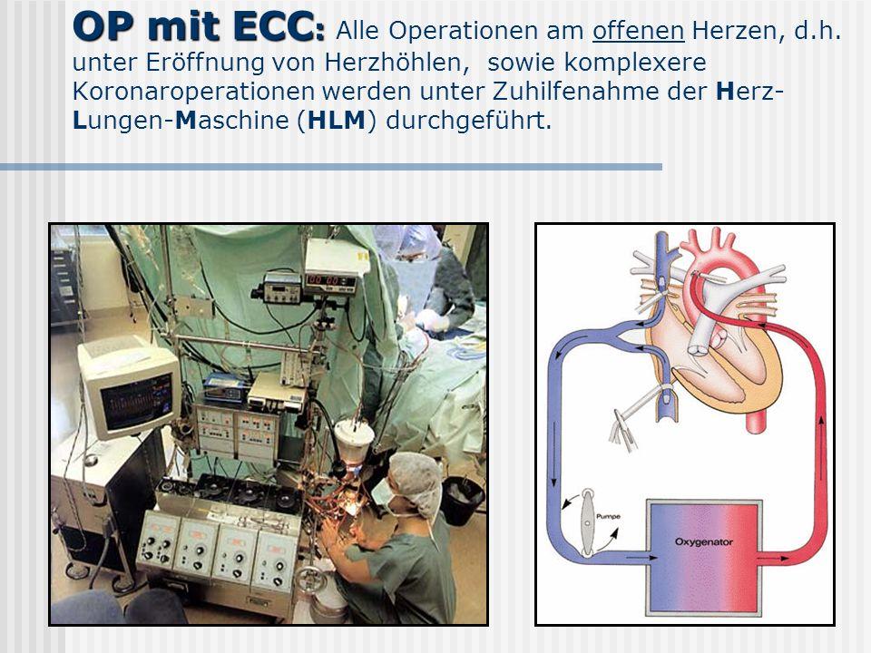 OP mit ECC: Alle Operationen am offenen Herzen, d. h