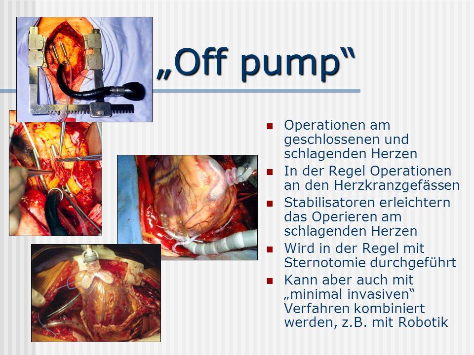 """""""Off pump Operationen am geschlossenen und schlagenden Herzen"""