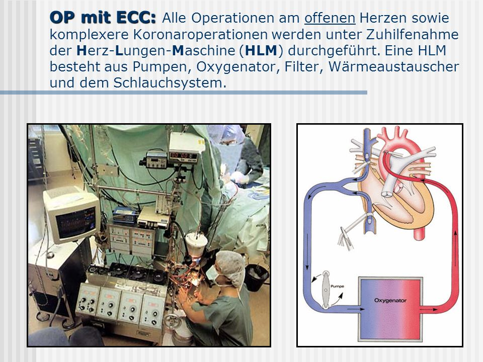 OP mit ECC: Alle Operationen am offenen Herzen sowie komplexere Koronaroperationen werden unter Zuhilfenahme der Herz-Lungen-Maschine (HLM) durchgeführt.