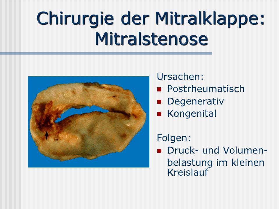 Chirurgie der Mitralklappe: Mitralstenose