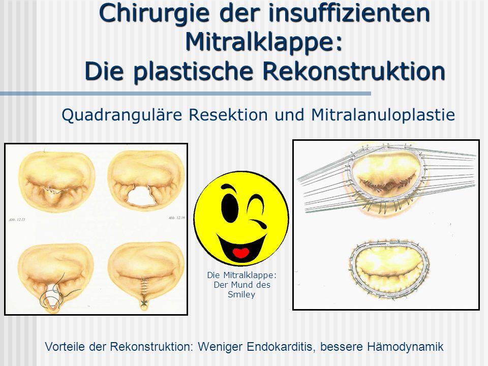 Chirurgie der insuffizienten Mitralklappe: Die plastische Rekonstruktion