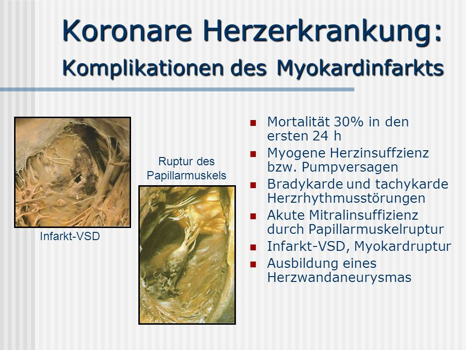 Koronare Herzerkrankung: Komplikationen des Myokardinfarkts