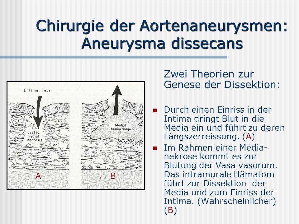 Chirurgie der Aortenaneurysmen: Aneurysma dissecans