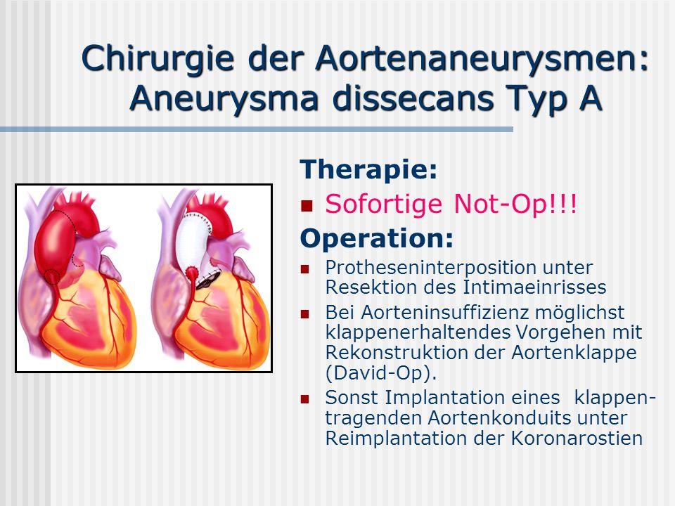Chirurgie der Aortenaneurysmen: Aneurysma dissecans Typ A