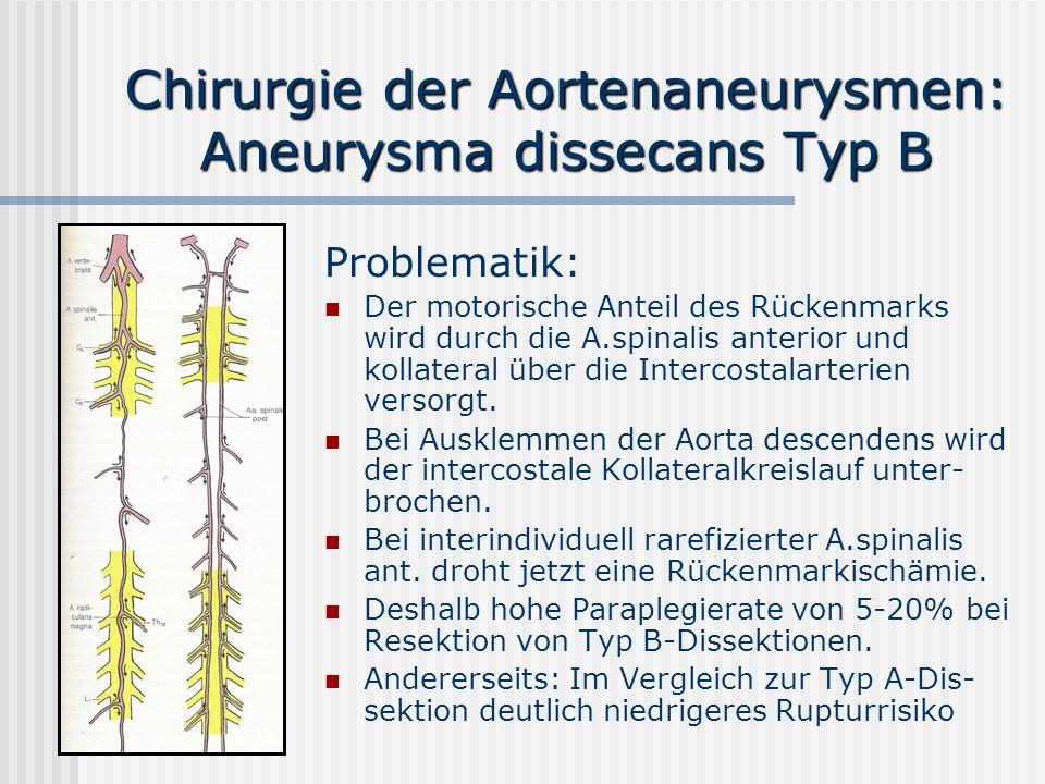 Chirurgie der Aortenaneurysmen: Aneurysma dissecans Typ B