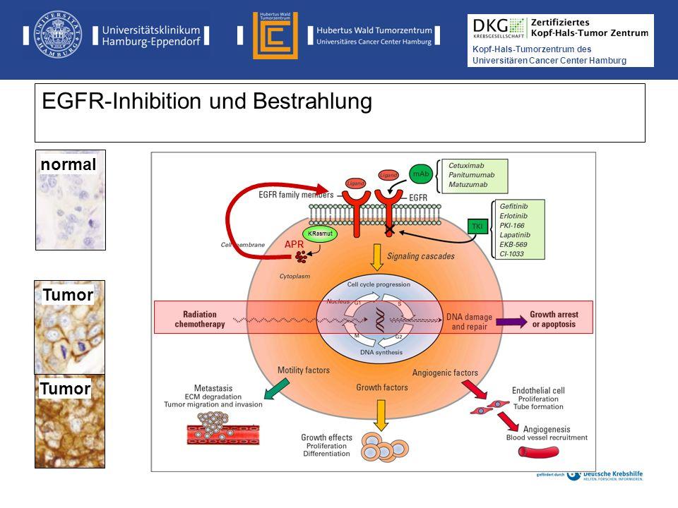 EGFR-Inhibition und Bestrahlung