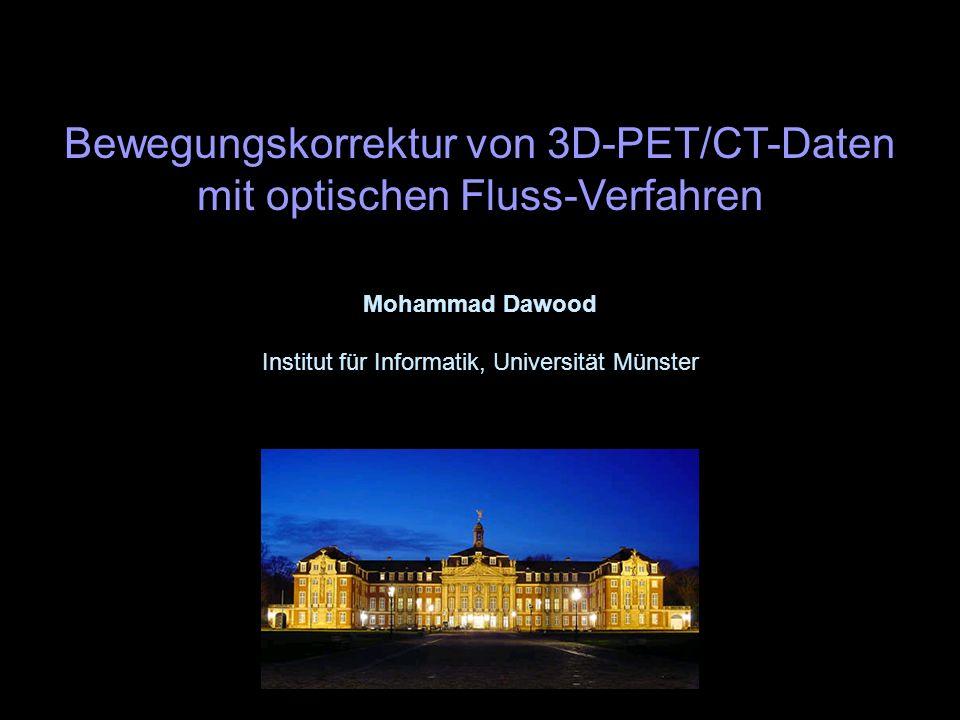 Bewegungskorrektur von 3D-PET/CT-Daten mit optischen Fluss-Verfahren