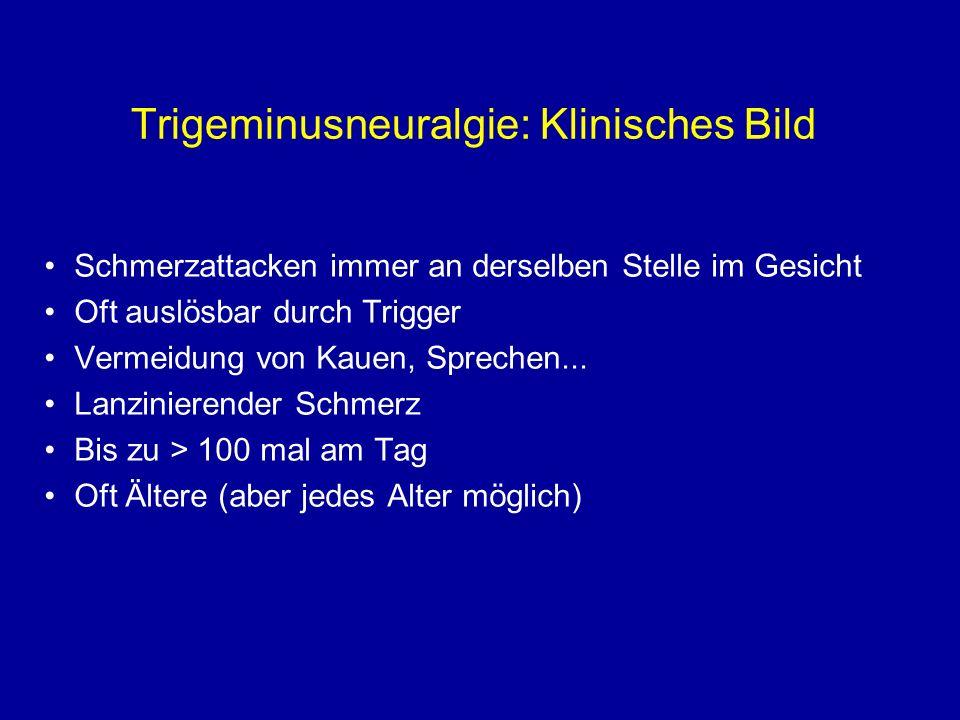 Trigeminusneuralgie: Klinisches Bild