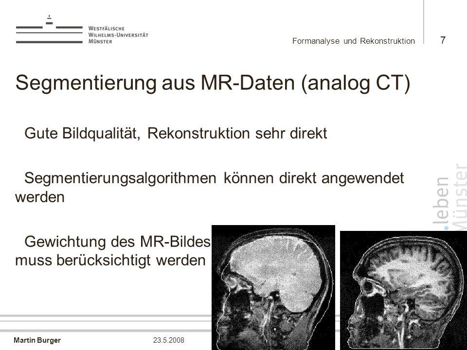 Segmentierung aus MR-Daten (analog CT)
