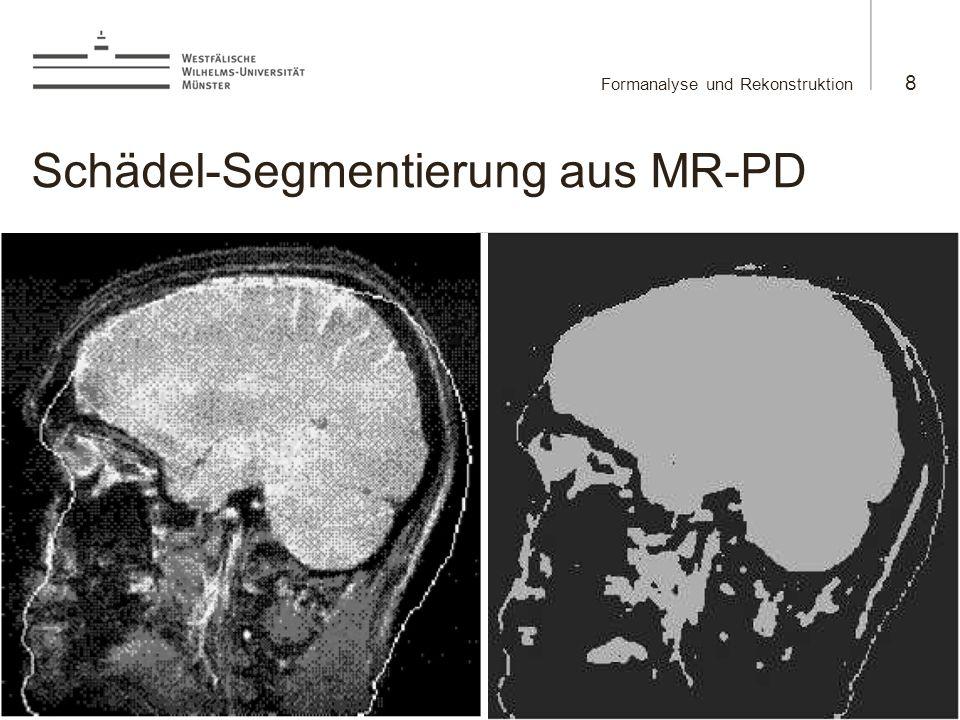 Schädel-Segmentierung aus MR-PD
