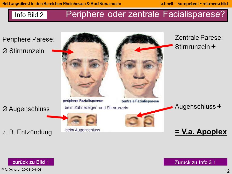 Periphere oder zentrale Facialisparese
