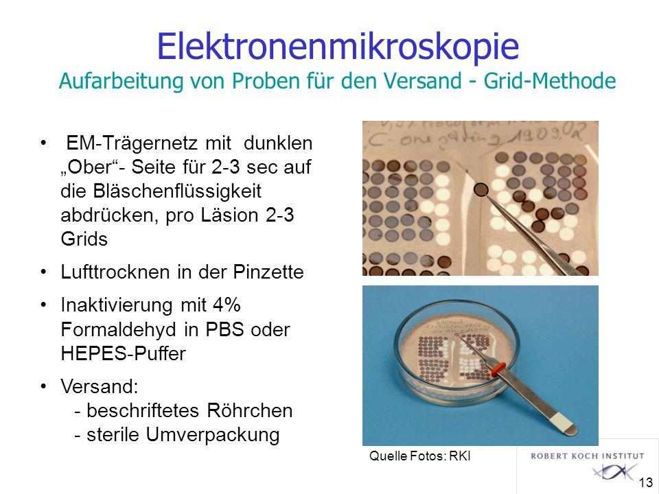 Elektronenmikroskopie Aufarbeitung von Proben für den Versand - Grid-Methode