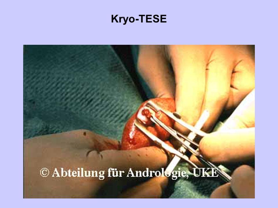 Kryo-TESE