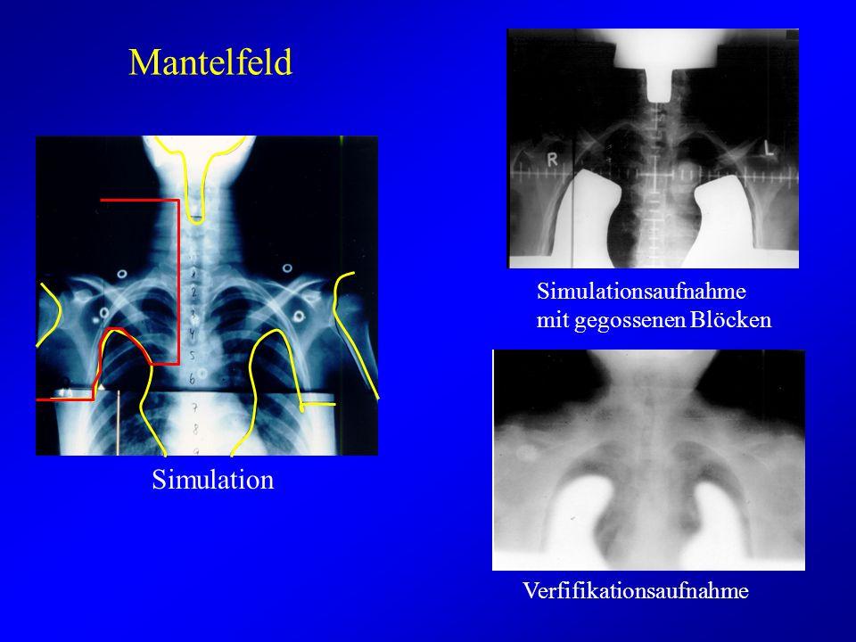 Mantelfeld Simulation Simulationsaufnahme mit gegossenen Blöcken